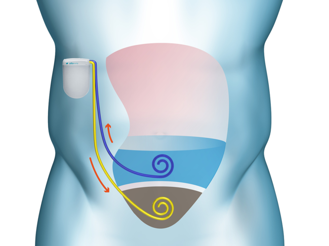 Illustration of device in body