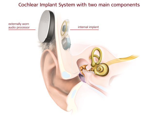 Illustration of ear anatomy, traditional cochlear implant
