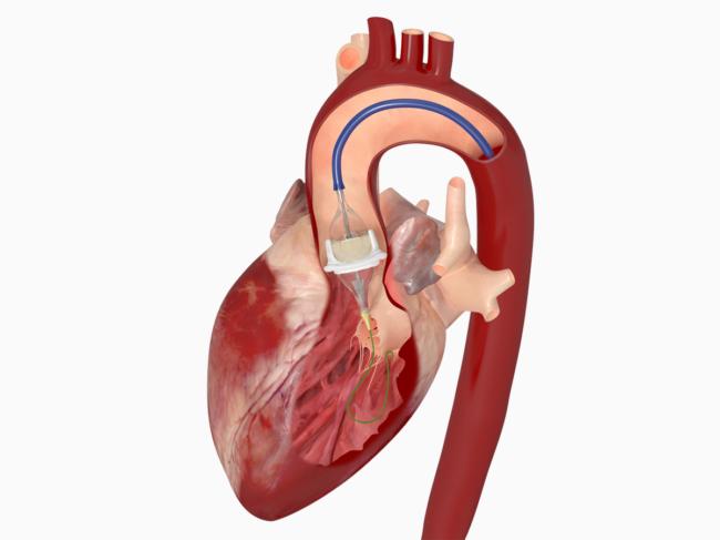 Device in heart