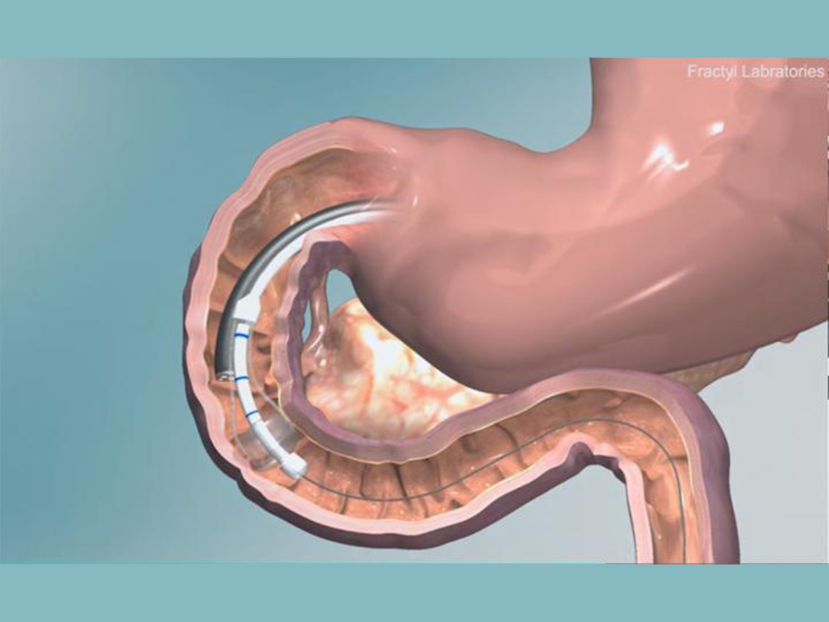 Illustration of Revita DMR in intestine