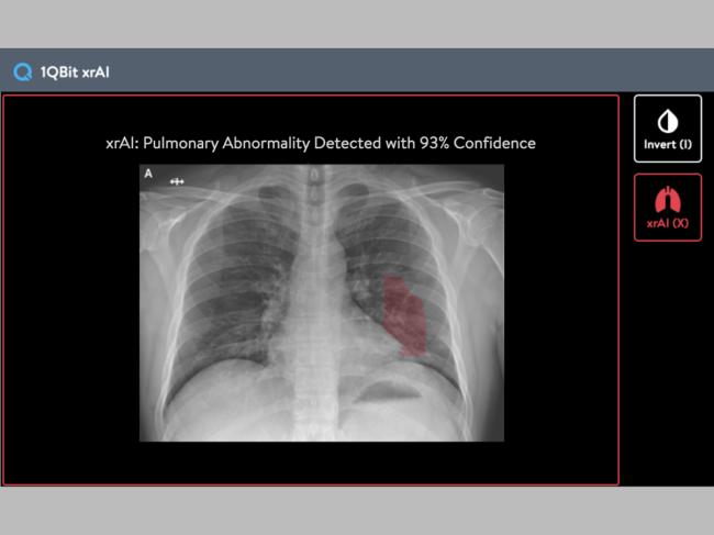 1QBit-xrAI-Chest-X-ray-Abnormal.png