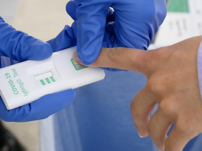 COVID-19 IgG/IgM antibody test