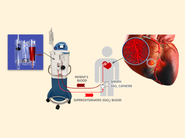 Diagram of SSO2 use for heart