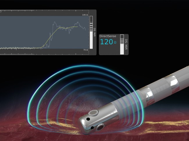 Illustration of local impedance field on tissue being monitored during ablation