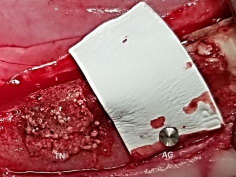 6 2 launchpad dental bone graft