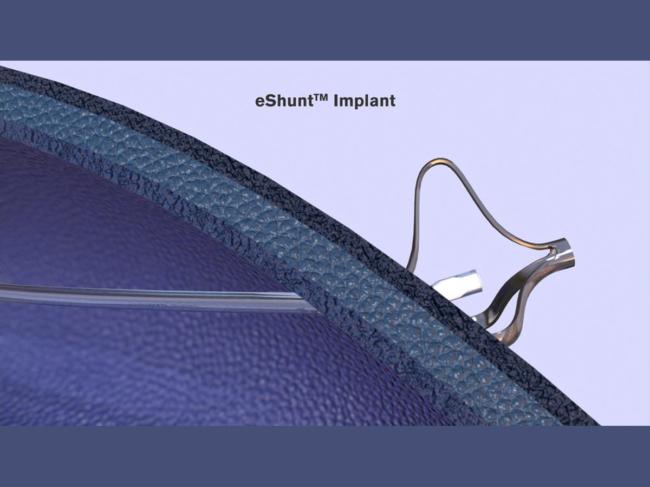 Illustration of Eshunt in the skull