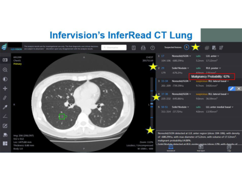 7 10 inferread ct lung