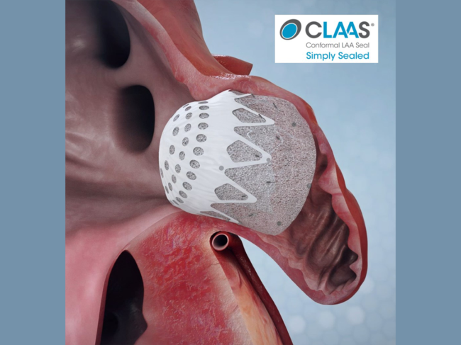 Illustration of CLAAS in heart