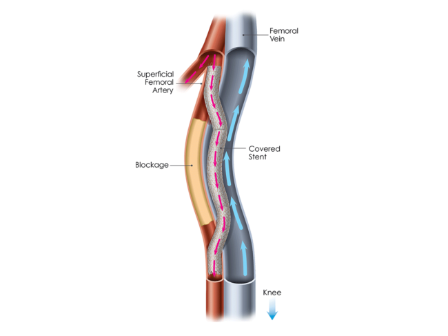 Illustration of Detour system in femoral artery/vein
