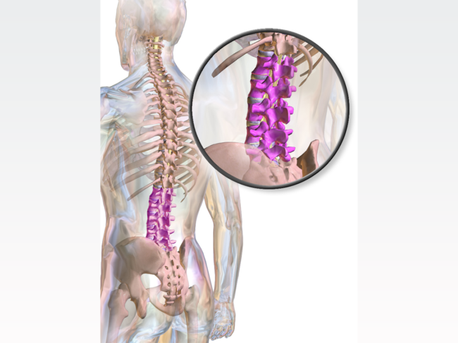 Human anatomy illustration with lumbar spine highlighted in purple