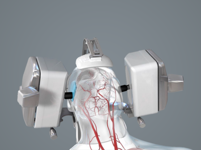 Illustration of head, brain blood flow with Novaguide