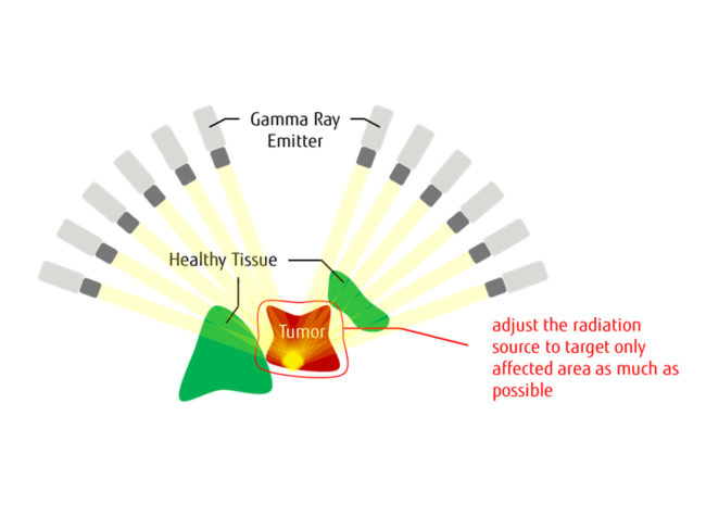 Illustration of gamma rays targeting tumor