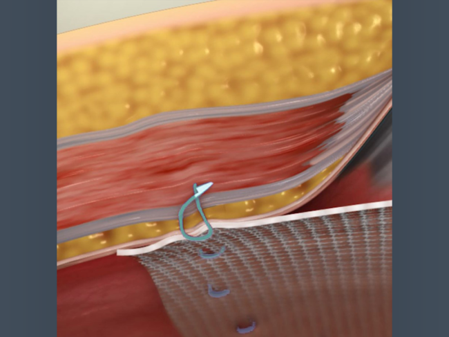 Illustration of Fastouch being used to fasten mesh to the abdominal wall
