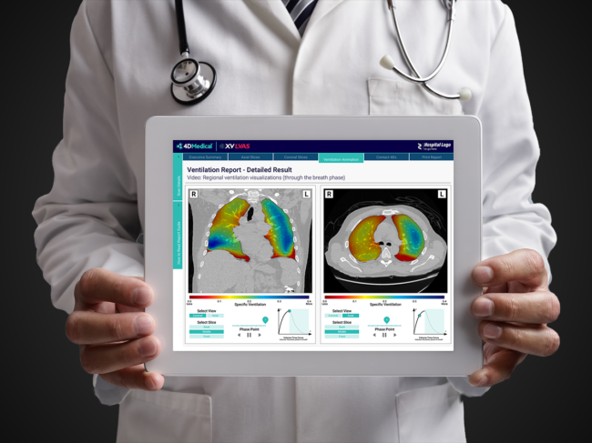 Doctor holding tablet with 4dmedical software