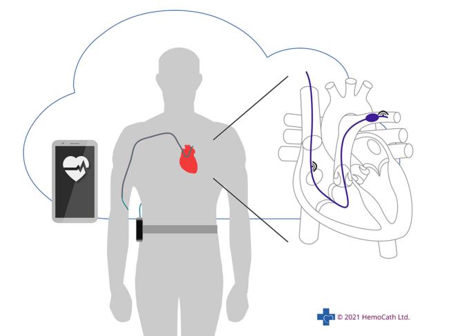Diagram of Hemocath intelligent HF monitoring platform