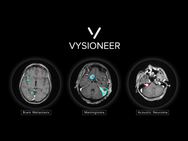 Brain scan images with tumors edged out by AI