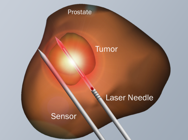 Illustration of prostate, focal ablation device