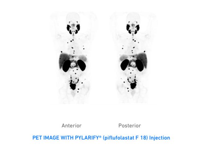 PET imaging with Pylarify