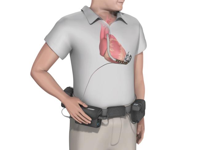 3D rendering of man wearing HVAD on heart