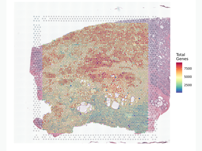 Prostate cancer tissue section overlaid with data from the Visium Spatial Gene Expression for FFPE