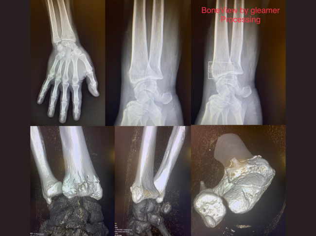 X-ray bone images from Boneview software