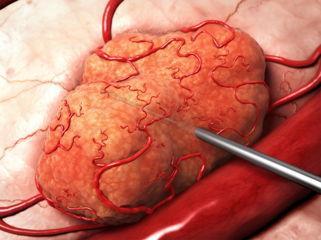Illustration of DART being inserted into tumor