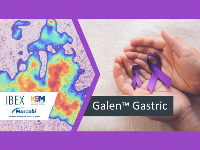 Galen Gastric concept image