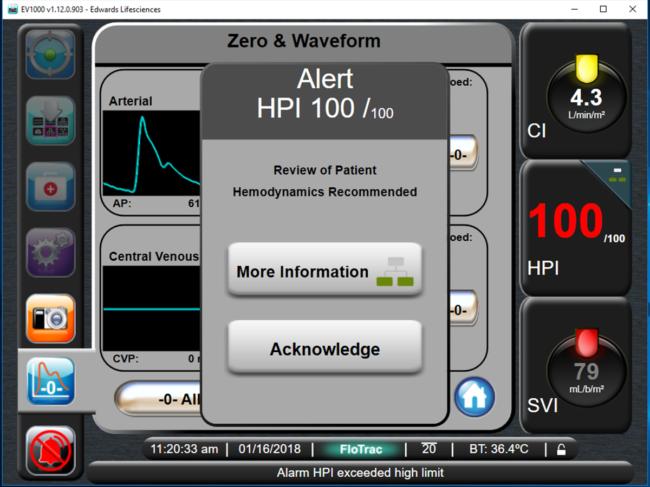 Acumen HPI software screenshot