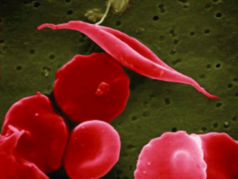 Ash-sickle-cell-disease-12-10
