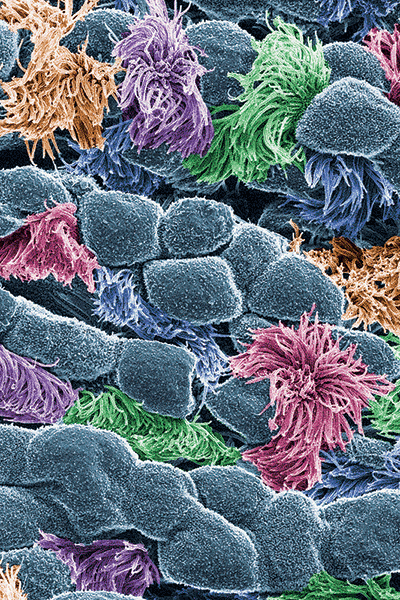 Cells lining trachea