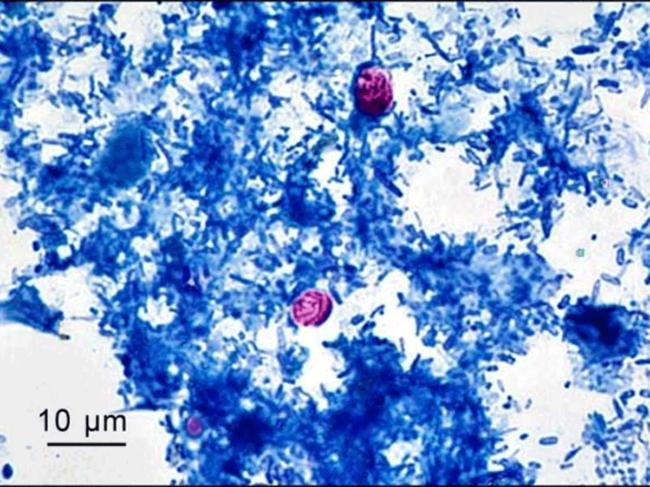 Optical microscopy showing Cryptosporidium