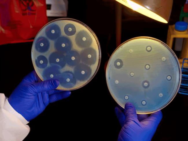 Antibiotic susceptibility testing