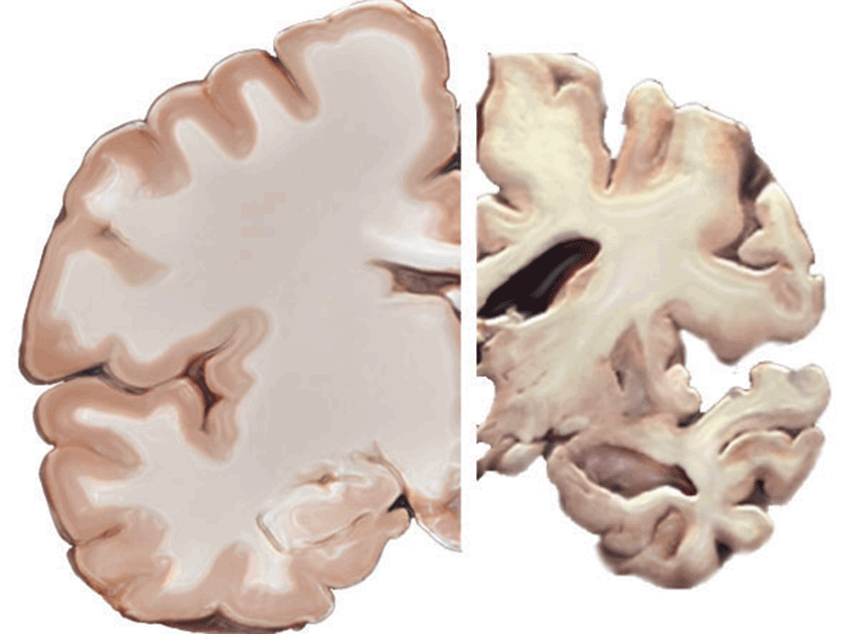 Healthy brain and brain with severe Alzheimer's disease