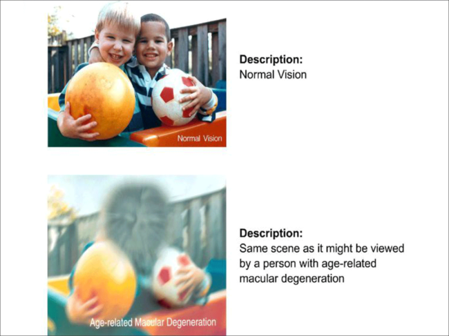 Normal vision vs. vision with AMD