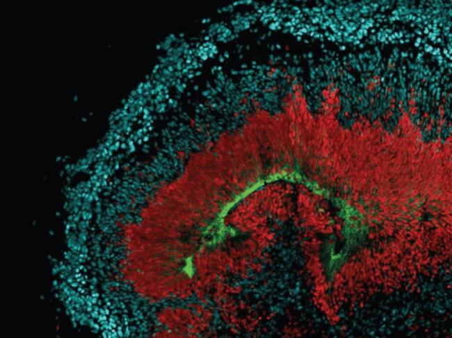 Stem cell-derived cerebral organoid