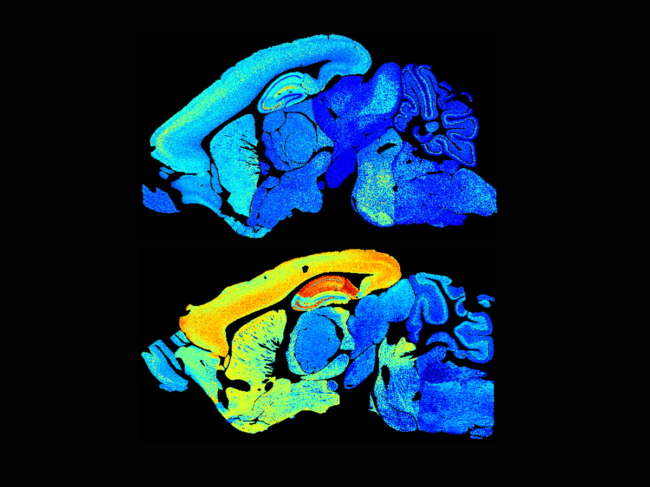 Young and adult mouse brains