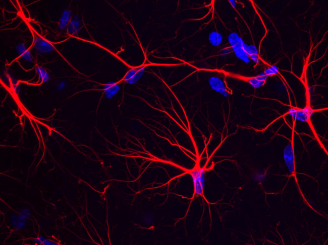 Bench Press Astrocytes-in-the-mouse-hippocampus 3-6
