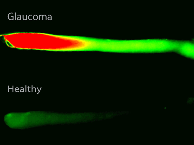 Leakage in the barrier between the eye and the optic nerve in<br /> glaucoma