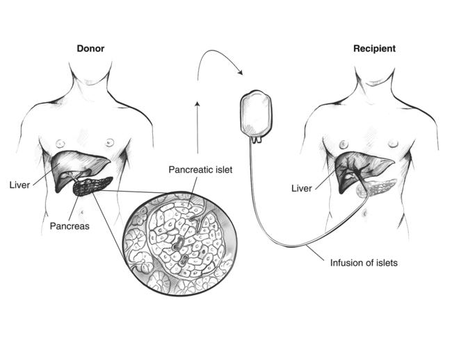 Islet transplantation schematic