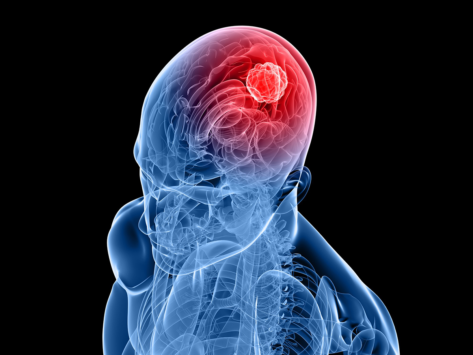 3d-head-brain-cancer