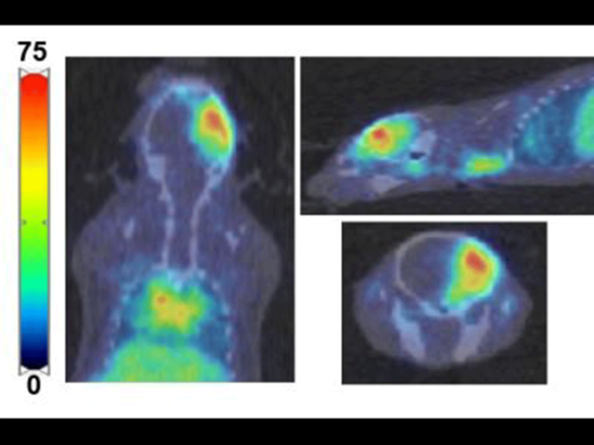 PET imaging