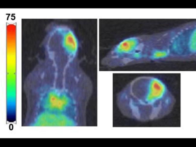 PET imaging