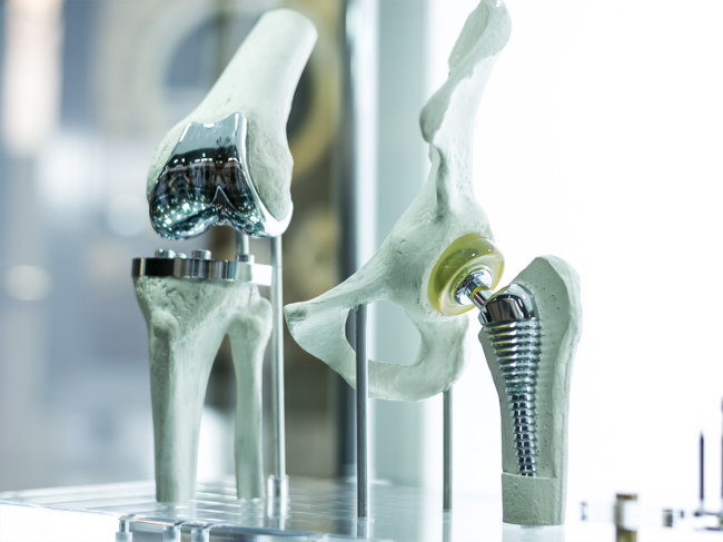 Orthopedics implants, joint-replacements