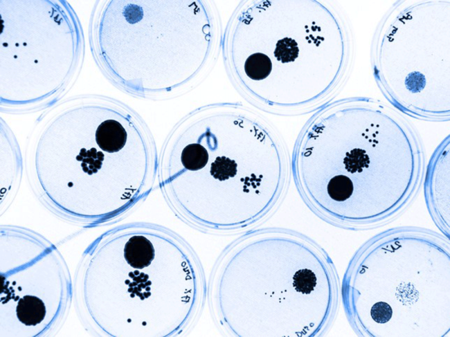 Bacteria-in-petri-dishes.png