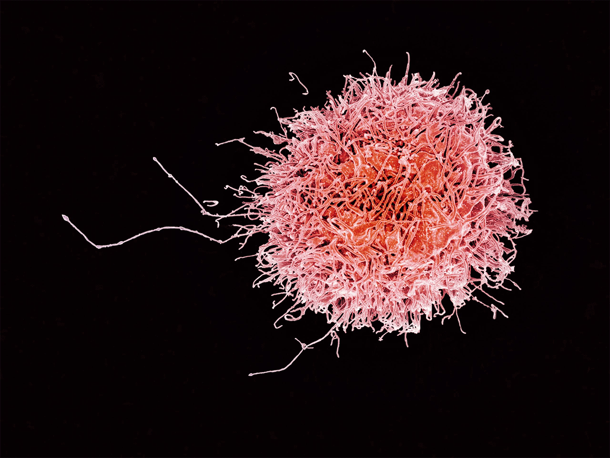 Human NK cell