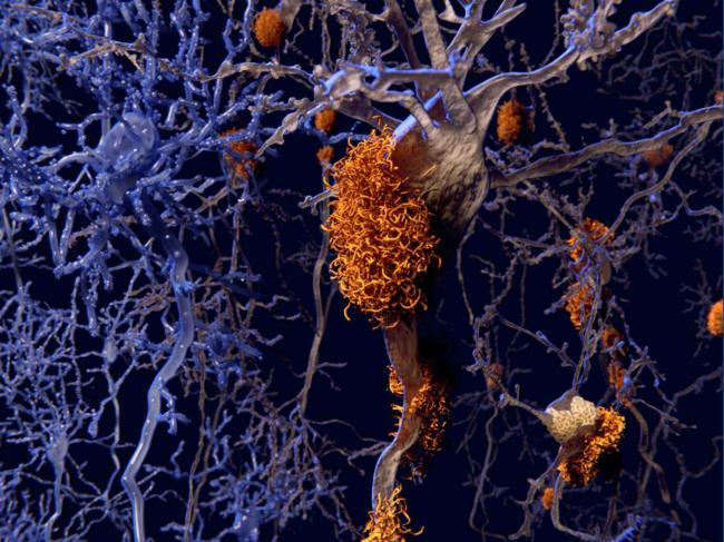 Science-tau-neuron