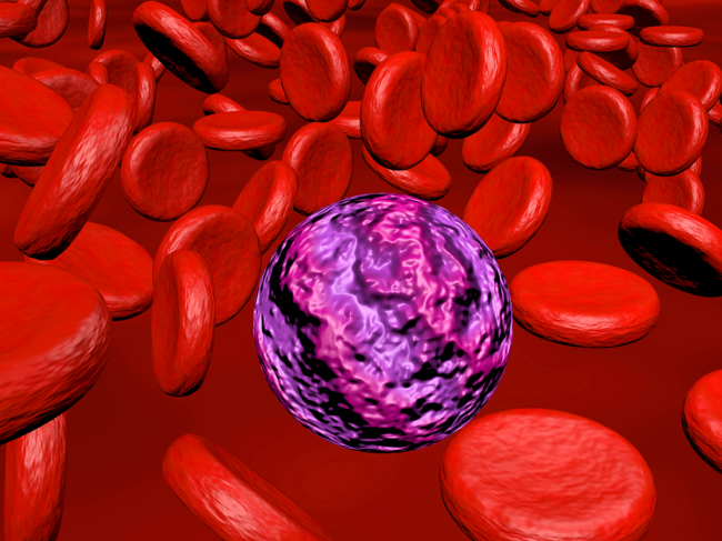 Acute myeloid leukemia illustration