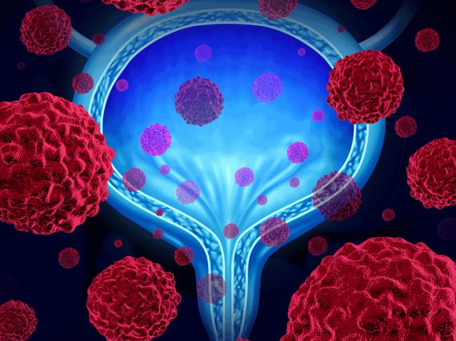 Bladder cancer illustration