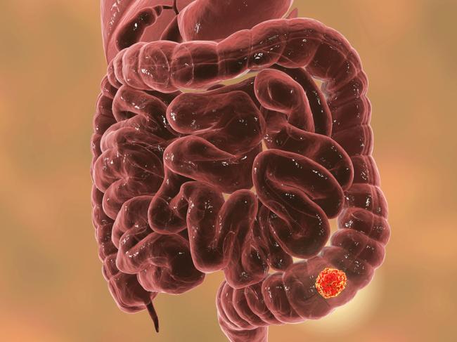 Colorectal cancer illustration