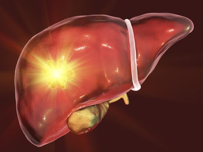 Liver tumor treatment conceptual illustration